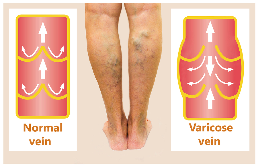 Helpful things to know about varicose veins and how to heal them